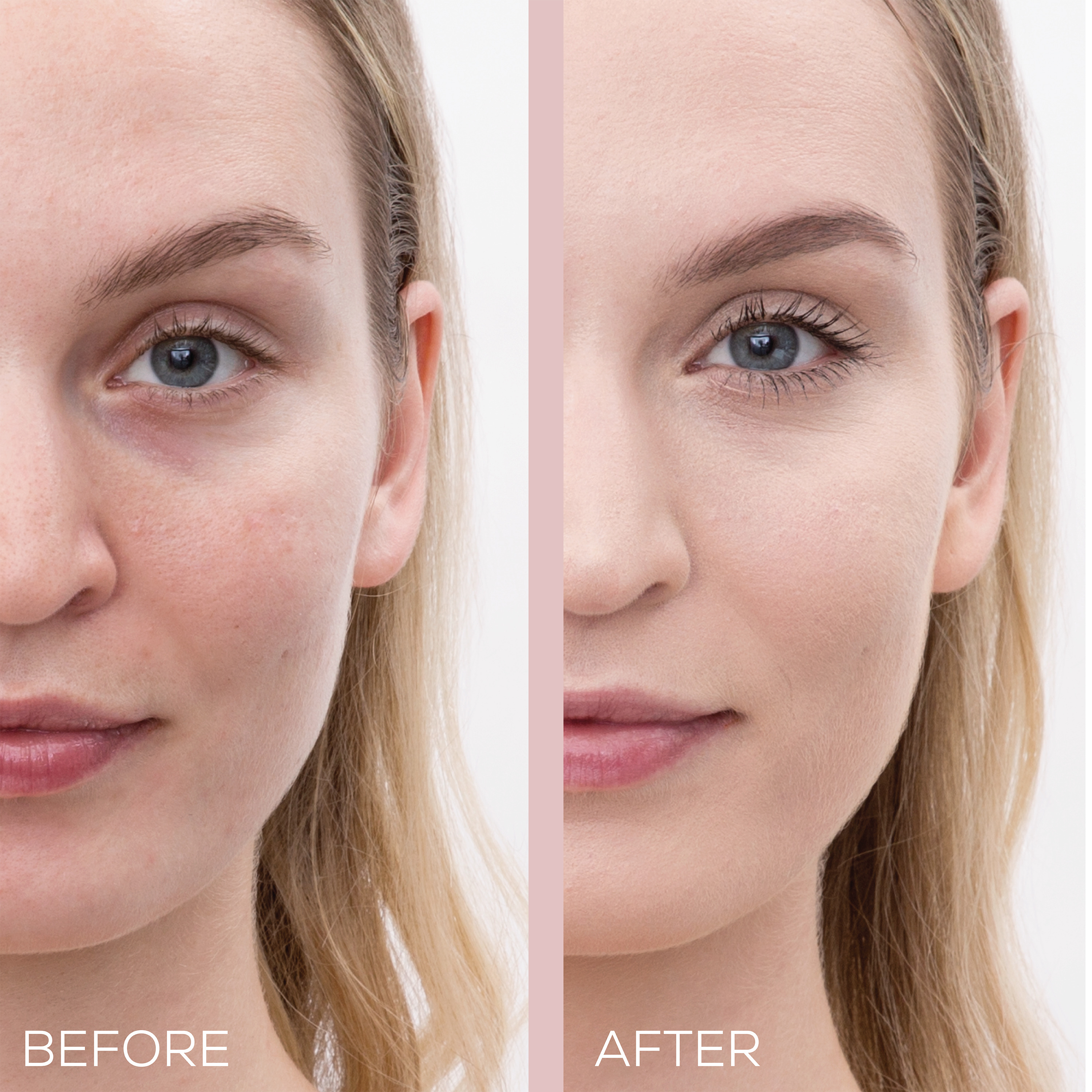 Acne coverage before and after
